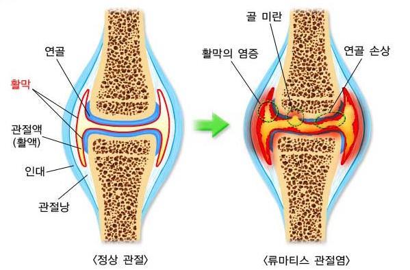 류마티스 관절염 사진