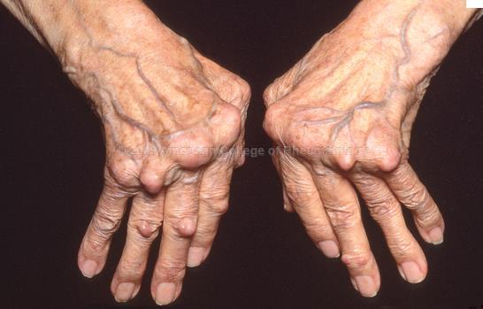 진행되어 변형과 기능 장애가 동반된 손 사진