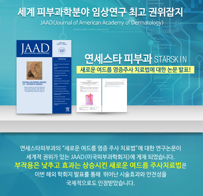 새로운 여드름 염증 주사 치료법