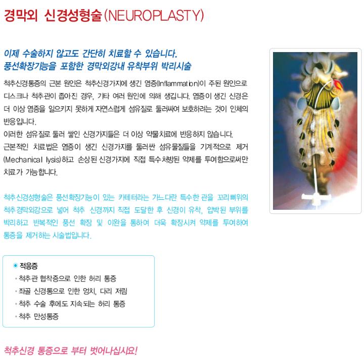 경막외 신경성형술