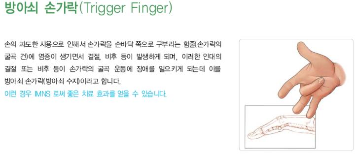 방아쇠 손가락